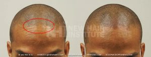 Scalp MicroPigmentation - New Hair Institute - Bold, Shaved Look - Patient 169