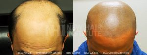 Scalp MicroPigmentation - New Hair Institute - Bold, Shaved Look - Patient 171