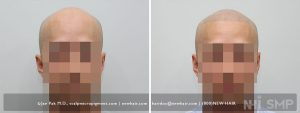 This is a 32 year old male with a Norwood Class 5 balding pattern and just did not like it. He shaved his head very closely so as not to call attention to the balding. This is common in young men. Once he had scalp micropigmentation, he put his balding behind him and went on with his life. Scalp micropigmentation addresses a person's self confidence in many cases we see. In this man, he lost the strength of his temple peaks and wanted temple peaks that stood out, and he got what he wanted.