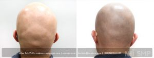 A patient with alopecia totalis (no hair anyplace on his body) wanted scalp micropigmentation to his entire scalp. Note the grading we did on the placement of the pigment to the neck. That is a real artistic process.