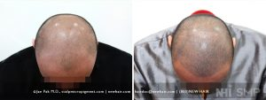 40 year old man with an early class 6 balding received scalp micropigmentation for his balding look. He agreed to keep his hair short to maximize the treatment. He was done in the first few months of our practice, and some of the ink we used at that time tended to give a bluish tint, which you can see in this patient. If he did not like it, we could remove the entire pigment with a q-switch laser and start again from scratch. This was offered to him at no charge, but it did not bother him as it did us. Today's ink rarely does this.