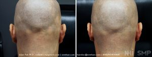 Scalp MicroPigmentation - New Hair Institute - Bold, Shaved Look - Patient 131b