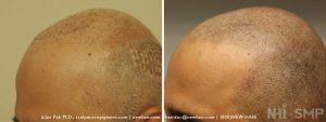 Scalp MicroPigmentation - New Hair Institute - Bold, Shaved Look - Patient 135c