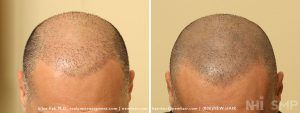 This patient had many hair transplants with the deformities that come with the older, outdated techniques. Scalp micropigmentation helped hide the visible deformities that bothered him. We could address some of the scalp deformities with other treatments, but he was happy with the results and postponed any further work.