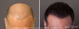 Scalp MicroPigmentation - New Hair Institute - Bold, Shaved Look - Patient 137b