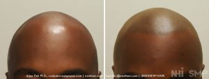 This is a 40 year old African American male who just did not like his balding look. He had scalp micropigmentation and he liked what he got, agreeing to keep his head shaved.