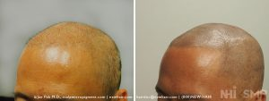 Scalp MicroPigmentation - New Hair Institute - Bold, Shaved Look - Patient 144b