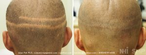 This young man had multiple hair transplants. The scalp micropigmentation process covered most of the scar and the scalp reduction scar (when the bald scalp is removed in the center of his scalp, a terrible surgery) was also camouflaged. You can just wee the bottom of the scalp reduction surgery on the 'after' picture. There is a gully in the mid-line of his scalp from the scalp reduction surgery which we could address when and if he wanted to do that with dermal fillers. We make it a point to offer solutions to all of the deformities of the scalp caused by previous hair transplants.