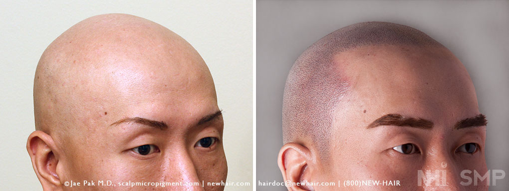 Scalp MicroPigmentation - New Hair Institute - Bold, Shaved Look - Patient 147b