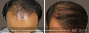 This patient used a comb-over to cover his frontal balding. He did not quite have enough hair to pull it off. With scalp micropigmentation under the comb-over, he could keep his hair long and achieve his styling goals. He wanted it to be very subtle and we usually start off light, then progress to a darker, fuller look. This is mitigated by the need to have enough hair to lay on top of the SMP. He was satisfied with the first shade we did. I would have preferred a darker shade, but that can always be done later if he wishes. First and foremost, what we do must fit with what the patient wants, as the patient is always 'king' in our practice.