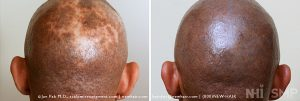 This patient had an autoimmune disease which we called scarring alopecia (which means hair loss from severe scarring). This left him a terribly deformed scalp. Scalp Micropigmentation seemed address the cosmetic problem without addressing his primary disease. These types of scarring alopecias are very difficult to treat and most of the time they leave behind terrible scars without any solution.