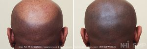 Scalp MicroPigmentation - New Hair Institute - Bold, Shaved Look - Patient 23b