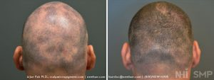 This patient had a disease called Alopecia Areata, which left him with bald patches throughout the scalp. Men are lucky in this regard as shaving his head is an option. For women with this disease, shaving the head is not a good option. The picture shown here after the scalp pigmentation was performed showed his hair in the process of growing out. He was experimenting with allowing his hair to grow out. The bald patches were well camouflaged when he shaved his head. Many of our patients test letting their hair grow out to see what they can do.