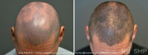 Scalp MicroPigmentation - New Hair Institute - Scalp Scars - Patient 47b