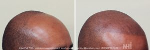 Scalp MicroPigmentation - New Hair Institute - Bold, Shaved Look - Patient 6c