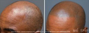 African American male with a Class 6 balding pattern, age 42. He wanted a younger look to match his athletic build. He was single. The scalp micropigmentation worked to give him the illusion of a full head of hair.
