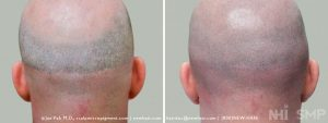 This patient had two hair transplant procedures. The first one produced a scar at the bottom of his donor area. The second was was an Follicular Unit Extraction (FUE) that the doctor told him was a scar-less surgery. His extreme Class 7 pattern should make him a non-candidate for any surgery and certainly not with proper expectations set by the doctors performing the surgeries. As you can see, the scar-less surgery from FUE must have been done by a surgeon who used large punches to leave such a 'scar-less' set of scars. By performing Scalp Micropigmentation, we gave the full appearing shaved head of hair he could only dream about. That cost him a lot of unnecessary money spent on unnecessary surgery and emotional pain. Doctors don't always do what is the right thing to do my their patients.