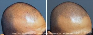 This is a patient with a Norwood Class 4a pattern of balding (frontal part of the head, but still leaving some hair in place). He never had a hair transplant and liked his new look.