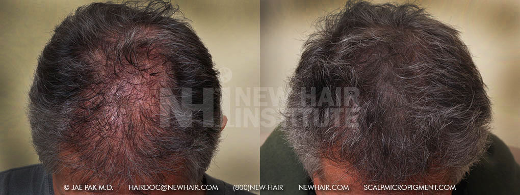 scalp-micropigmentation-man