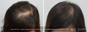Woman with thinning hair. Her sister, mother and her grandmother has this same problem. We addressed her problem with scalp micropigmentation, but expect her sister to come in one of these days.